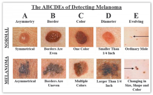 The ABCDEs of Detecting Melanoma